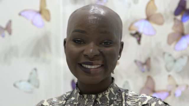 CNE Video | How Burn Survivor Shalom Blac Learned to Love Her Flaws