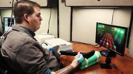 A Brain Implant Brings a Quadriplegic's Arm Back to Life