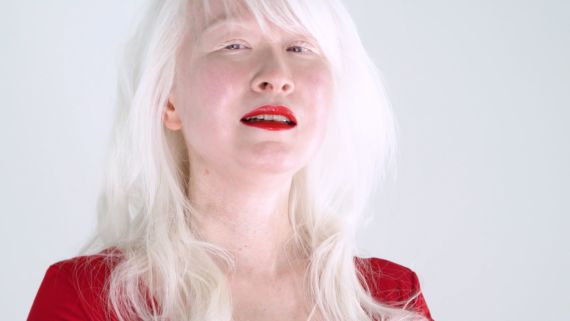 What Makes a Woman With Albinism Feel Beautiful