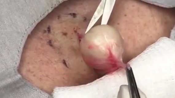 7 of Dr. Pimple Popper's Most Awe-Inspiring Videos