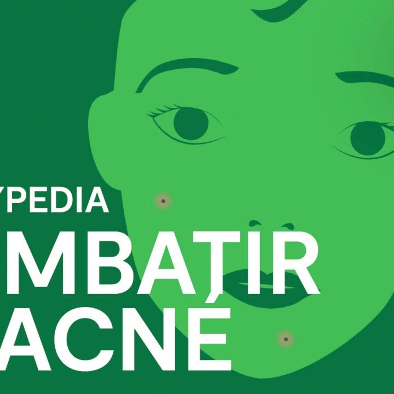 La guía definitiva para combatir el acné