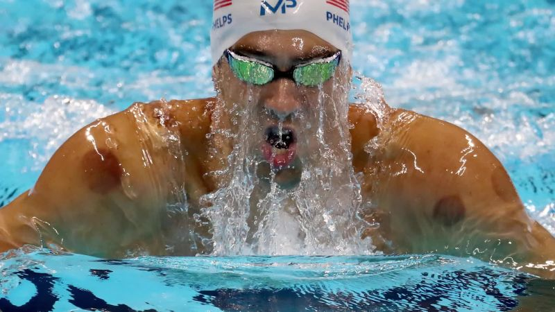 Cupping, the Olympics' Hottest Trend