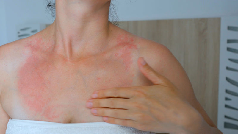 Skin Rash: 9 Questions That Will Help You Decode That Skin