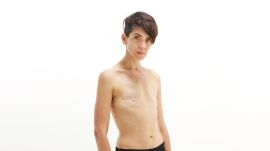 This Cancer Survivor Dispels The Stigma That Breasts Equal Femininity