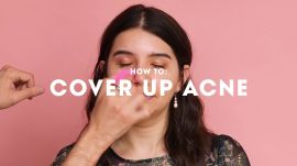 2018 Acne Awards: How to Cover Up Acne