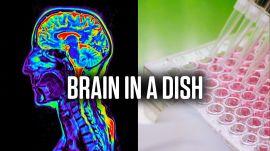 How Brain Organoids Help Scientists Battle Disease | WIRED Brand Lab