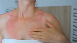 9 Questions That Will Help You Decode That Rash