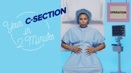 This is Your C-Section in 2 Minutes