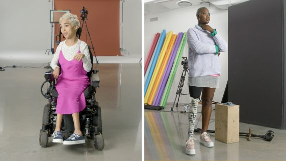 How I Got Discovered: Disabled Models Share Their Stories