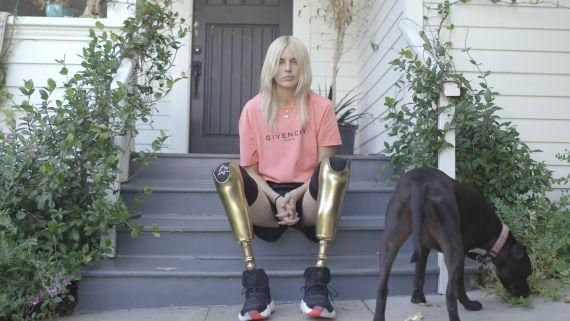 How Lauren Wasser, Fashion's Girl With the Golden Legs, Made a Triumphant Return
