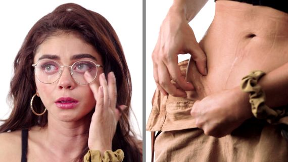 Sarah Hyland on Her Two Kidney Transplants