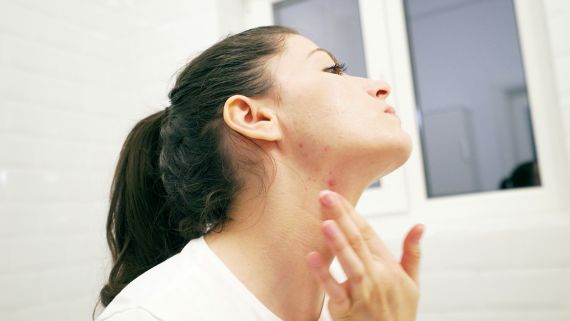 7 Mistakes You're Making When Covering Up Pimples