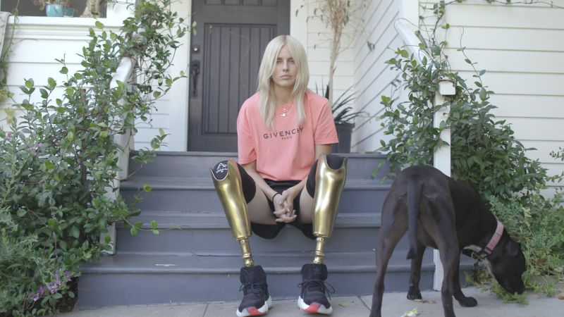 watch how lauren wasser fashion�s girl with the golden